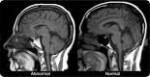 علاج ضمور خلايا المخ والتوحد بالخلايا الجذعية